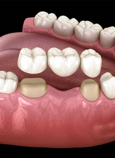 Dental Bridges Norwich - Newmarket Road Dental Clinic