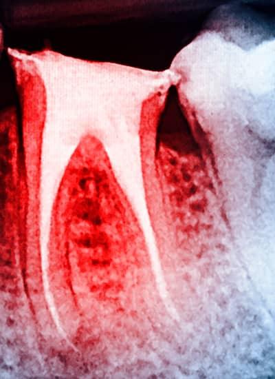 Endodontics - Newmarket Road Dental Clinic