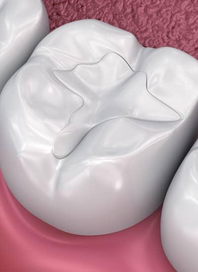 Fillings - Newmarket Road Dental Clinic